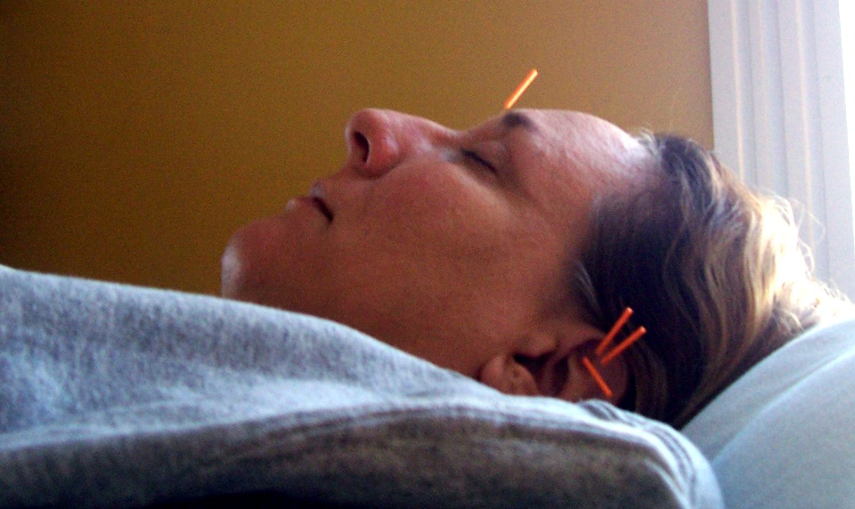Ear Needles at Louisville Community Acupuncture